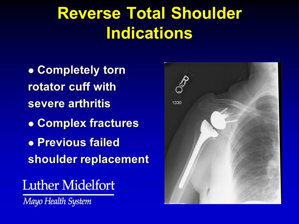 Reverse Total Shoulder Indications