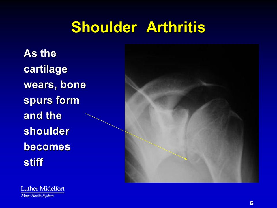 Shoulder Arthritis As the cartilage wears, bone spurs form and the shoulder becomes stiff
