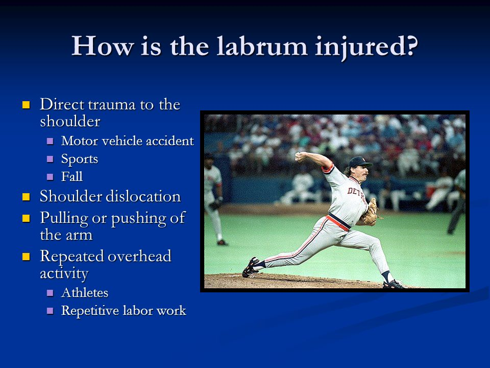 How is the labrum injured
