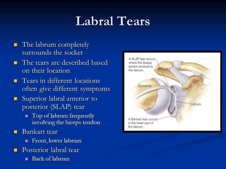 Labral Tears The labrum completely surrounds the socket