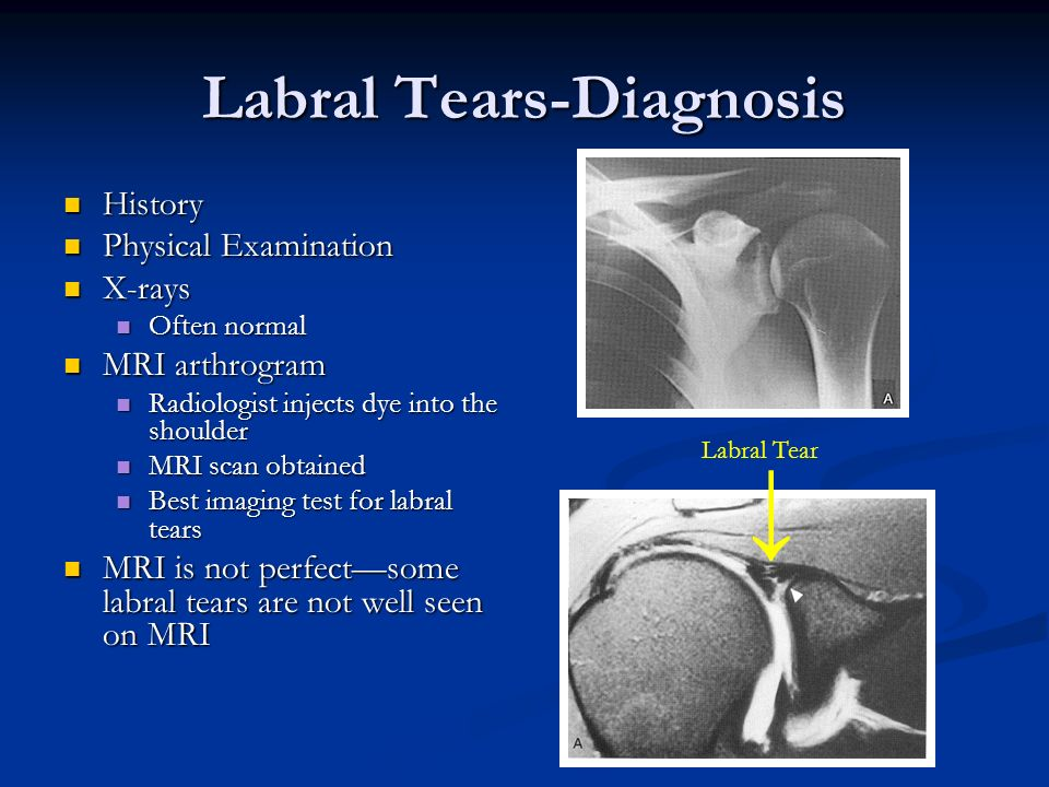 Labral Tears-Diagnosis