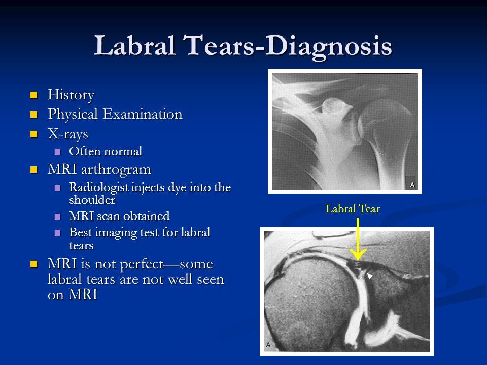 Labral Tears-Diagnosis