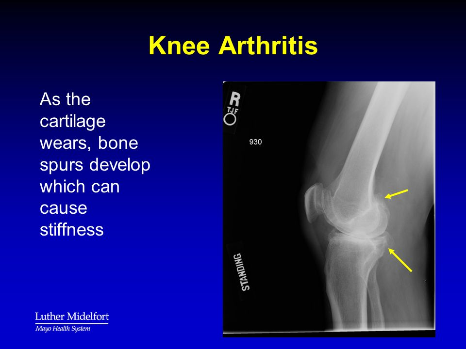 Total Joint Prep Class Knee Replacement Ppt Download