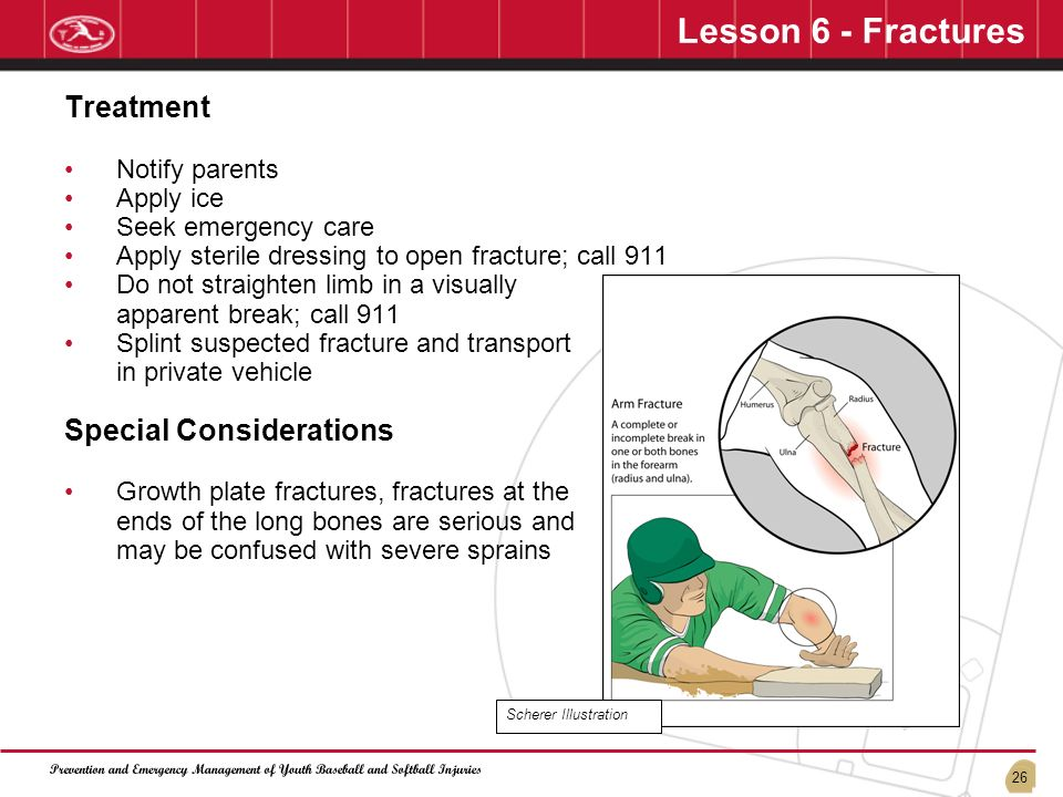 Lesson 6 - Fractures Treatment Special Considerations Notify parents