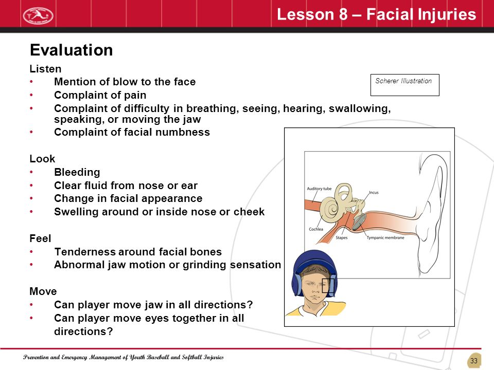 Lesson 8 – Facial Injuries