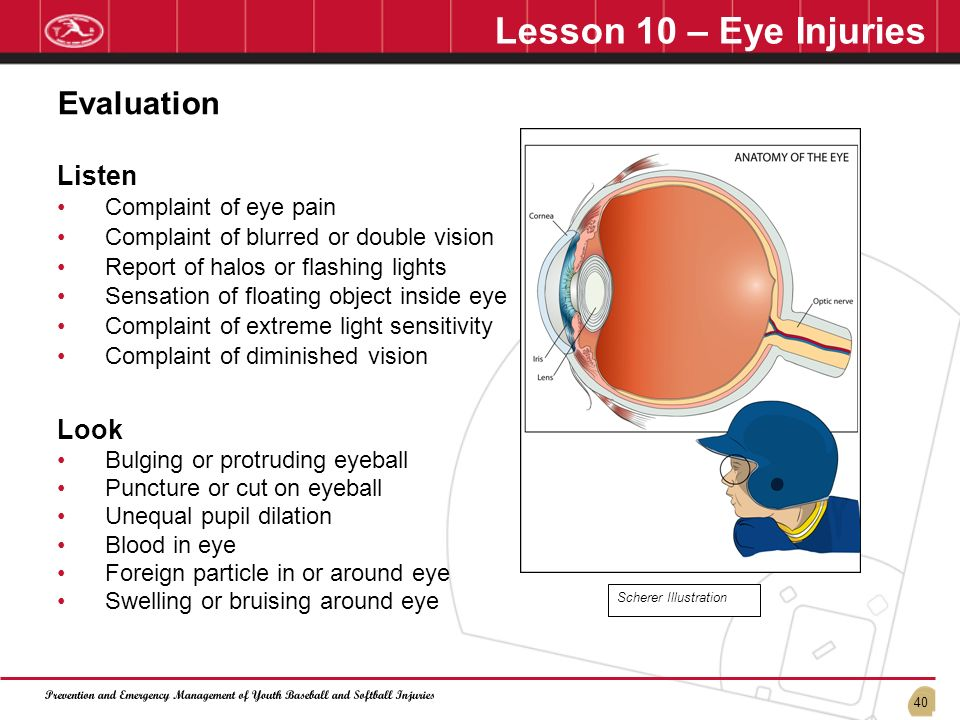 Lesson 10 – Eye Injuries Evaluation Listen Look Complaint of eye pain