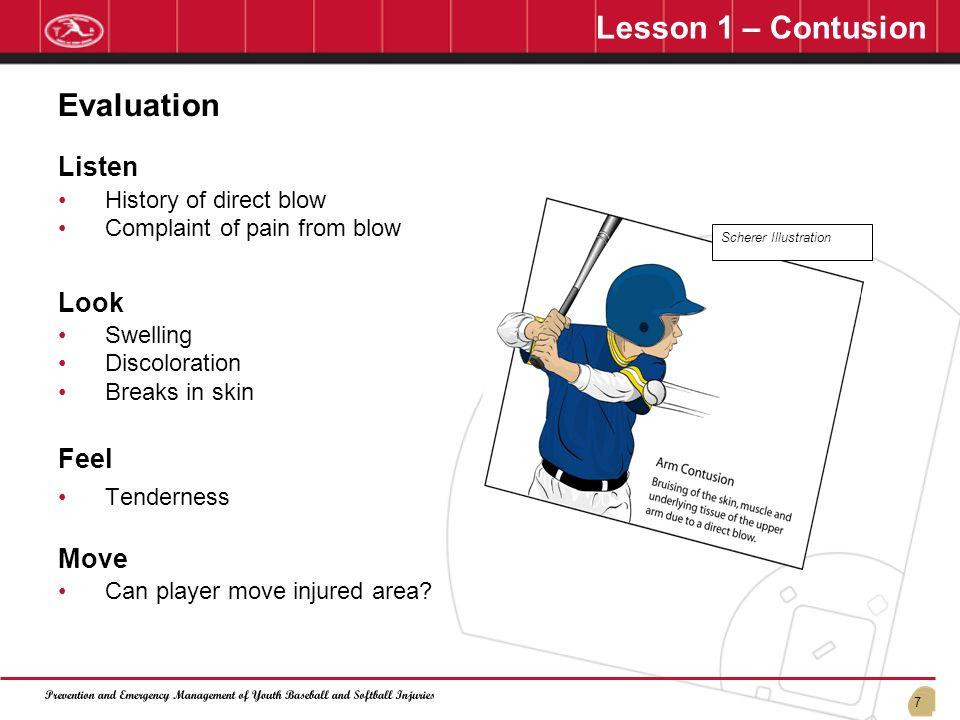 Lesson 1 – Contusion Evaluation Listen Look Feel Move