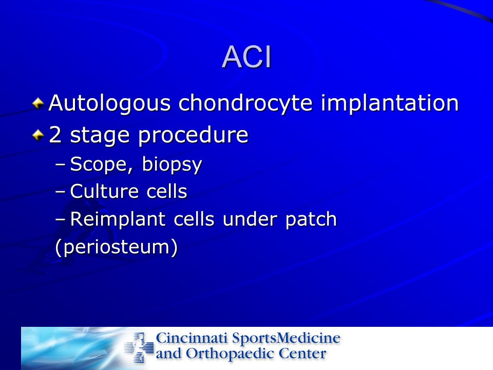 ACI Autologous chondrocyte implantation 2 stage procedure