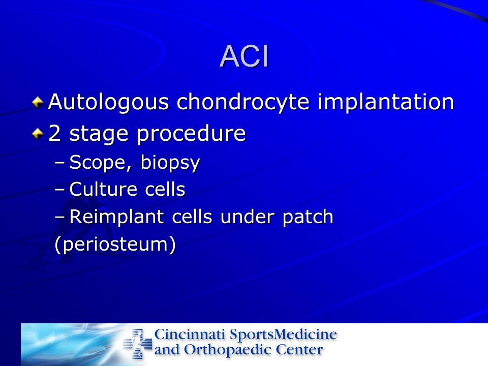 ACI Autologous chondrocyte implantation 2 stage procedure