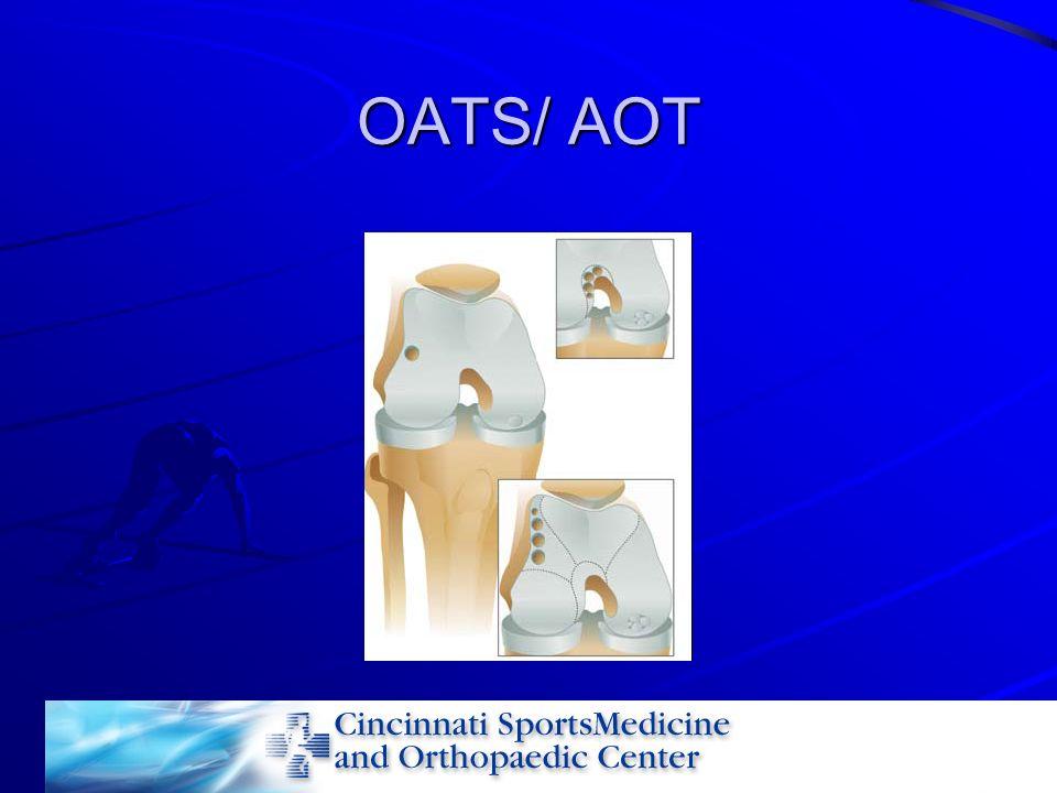 OATS/ AOT