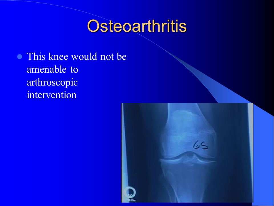 Osteoarthritis This knee would not be amenable to arthroscopic intervention