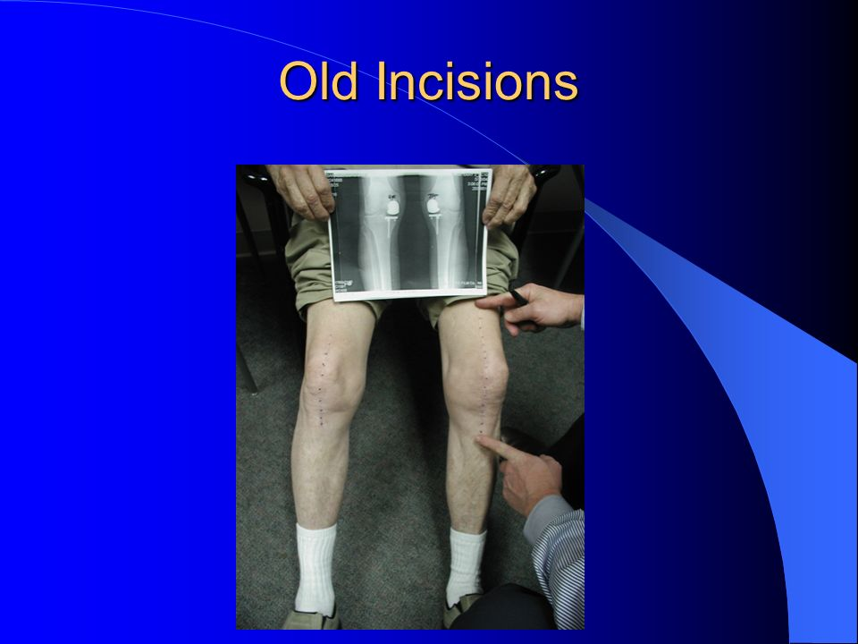 Old Incisions