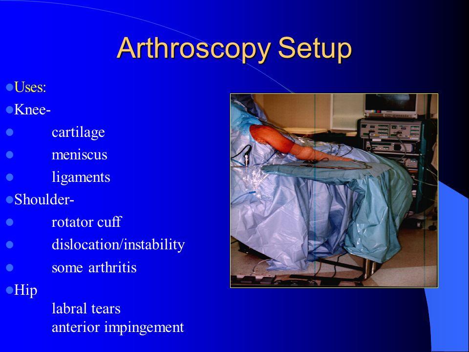 Arthroscopy Setup Uses: Knee- cartilage meniscus ligaments Shoulder-