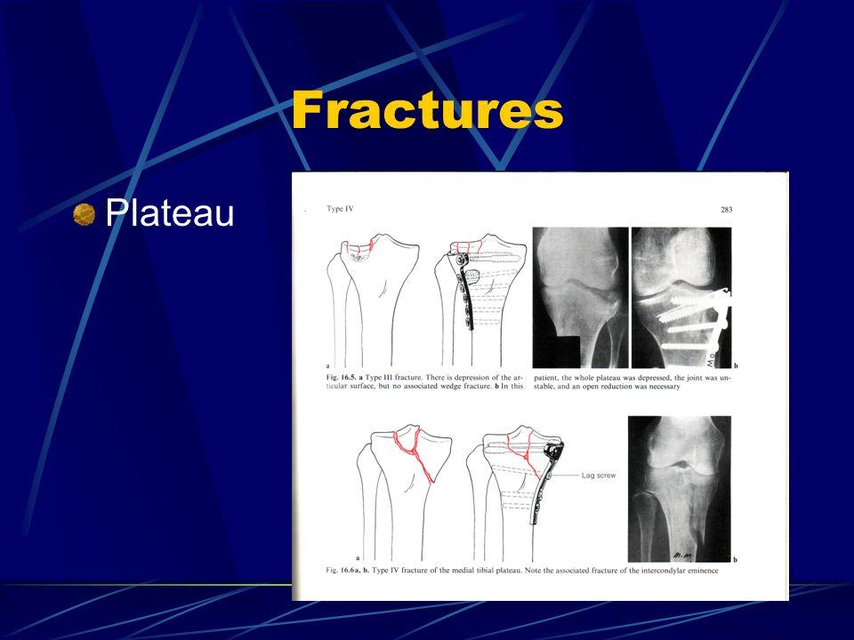 Fractures Plateau