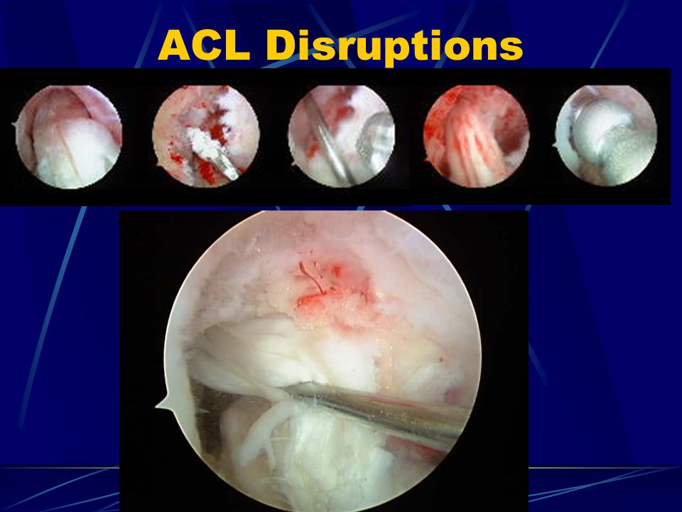 ACL Disruptions