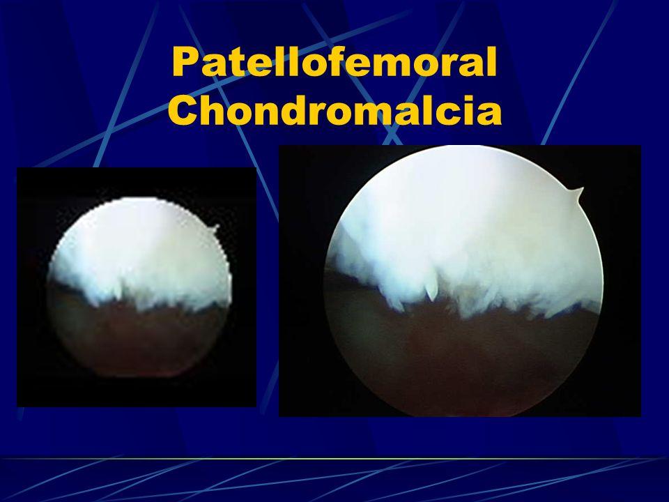 Patellofemoral Chondromalcia