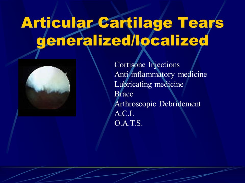 Articular Cartilage Tears generalized/localized
