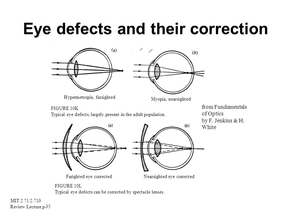 Eye defects and their correction