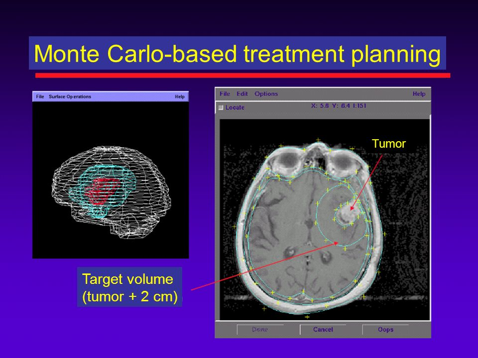 Monte Carlo-based treatment planning