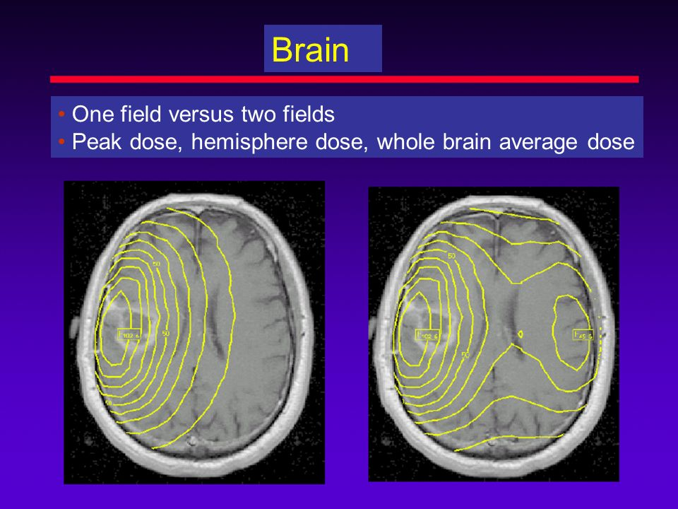 Brain • One field versus two fields