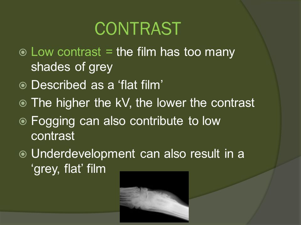 Radiographic Critique Problem Solving Ppt Video Online