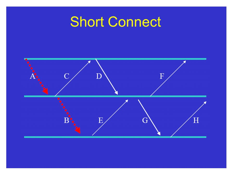 Short Connect
