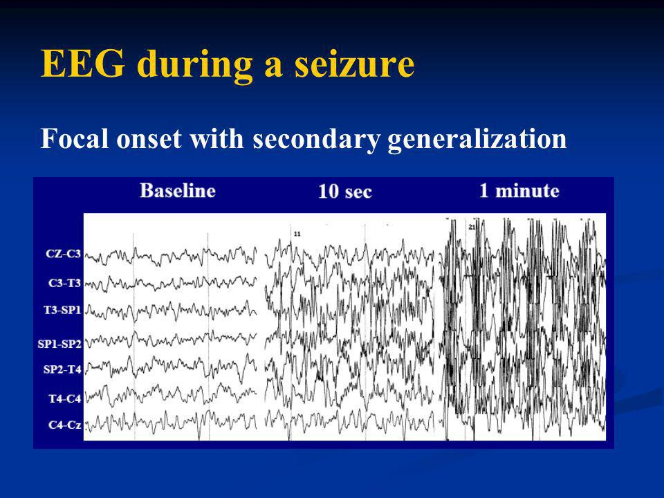 EEG during a seizure Focal onset with secondary generalization