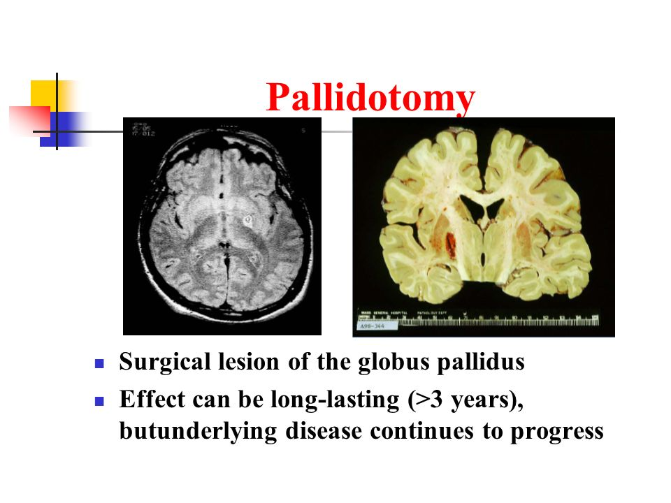 Pallidotomy Surgical lesion of the globus pallidus