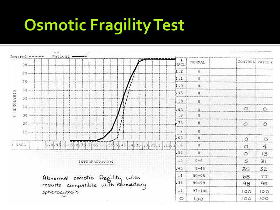 ?cell osmotic fragility essay Define osmotic fragility test osmotic fragility  naked eye single tube red cell osmotic fragility test for beta thalassemia  osmotic fragility test osmotic .