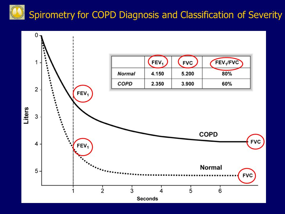 Spirometry for COPD Diagnosis and Classification of Severity