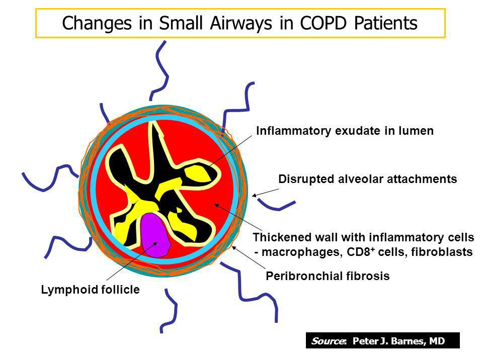 Changes in Small Airways in COPD Patients