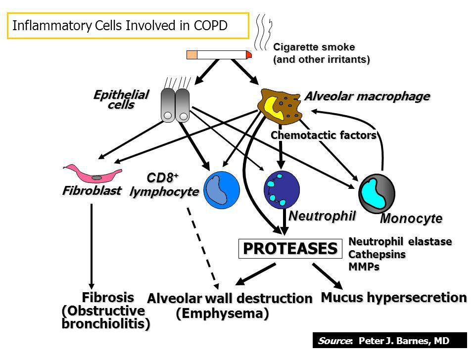PROTEASES Fibrosis Inflammatory Cells Involved in COPD CD8+ Neutrophil