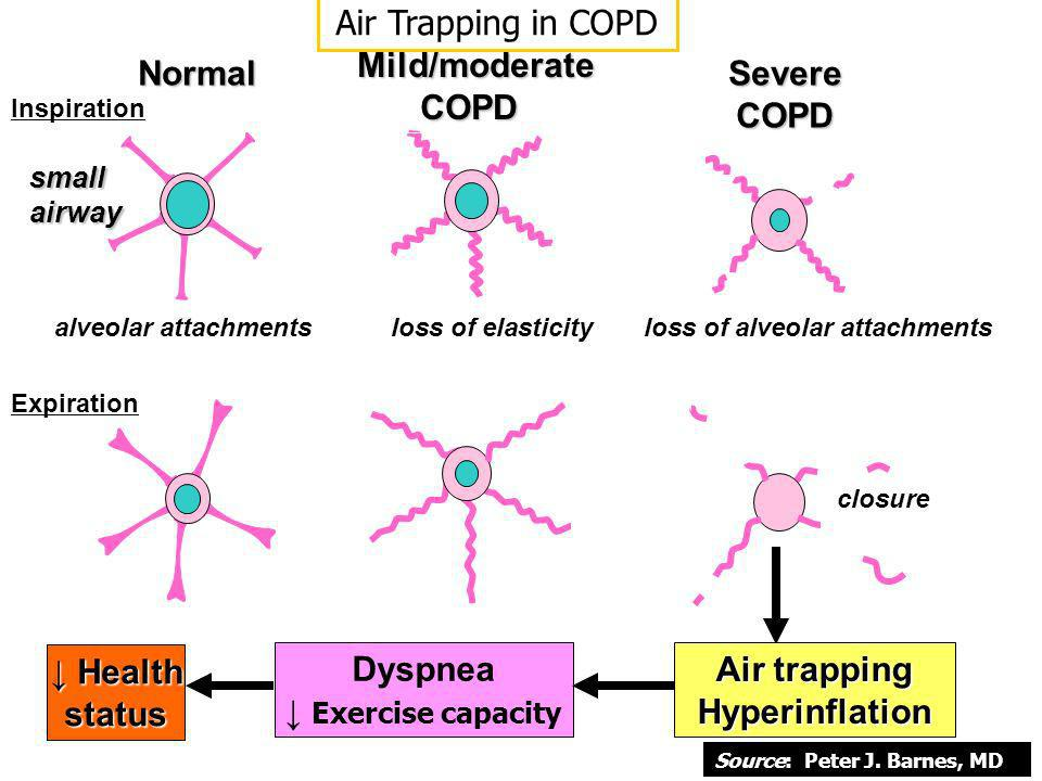Air Trapping in COPD Mild/moderate COPD Normal Severe COPD ↓ Health