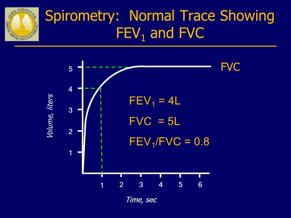 Spirometry: Normal Trace Showing FEV1 and FVC