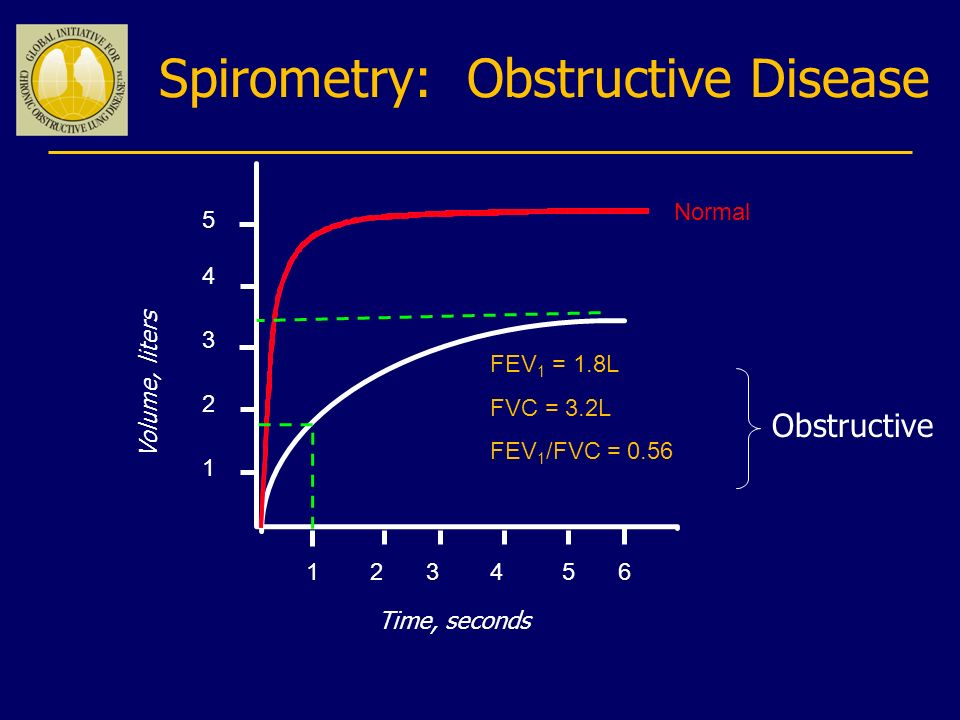 Spirometry: Obstructive Disease