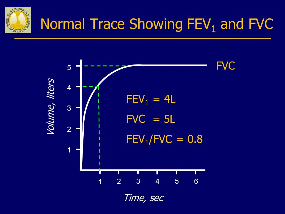 Normal Trace Showing FEV1 and FVC