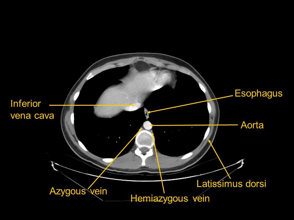 Esophagus Inferior vena cava Aorta Latissimus dorsi Azygous vein Hemiazygous vein
