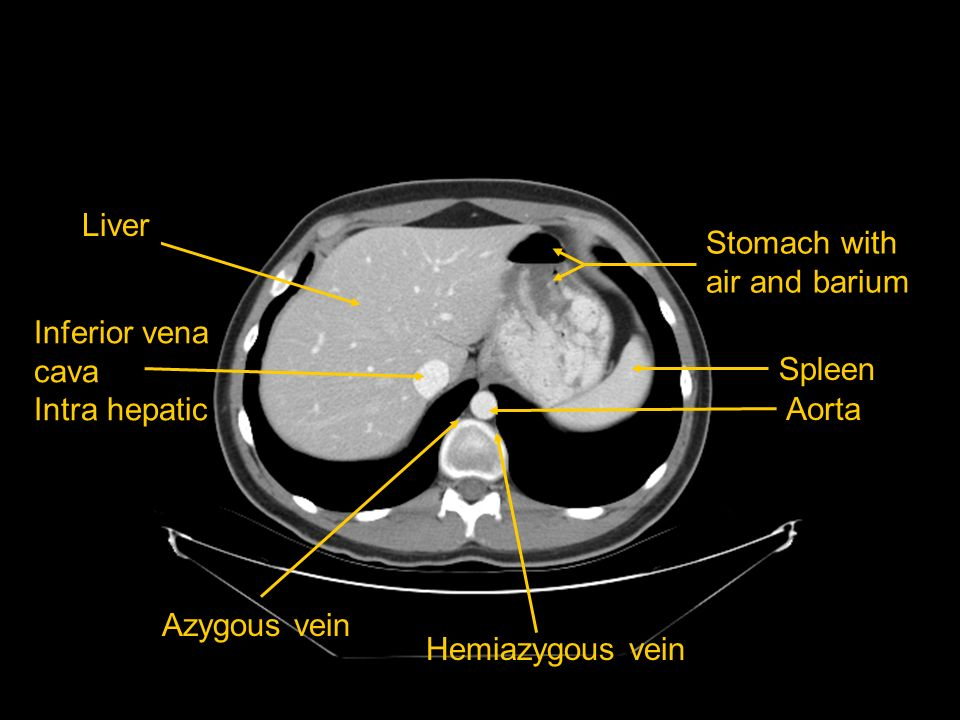 Liver Stomach with air and barium. Inferior vena cava. Intra hepatic. Spleen. Aorta. Azygous vein.
