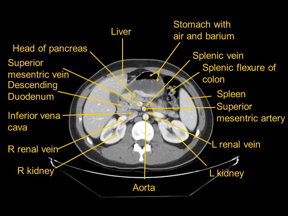 Stomach with air and barium