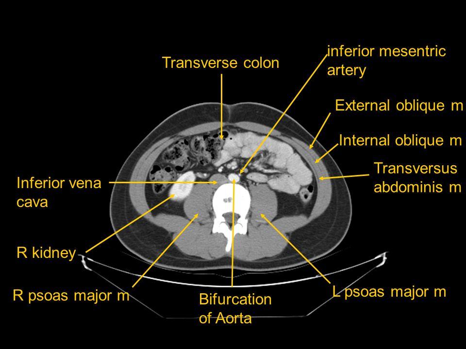 inferior mesentric artery