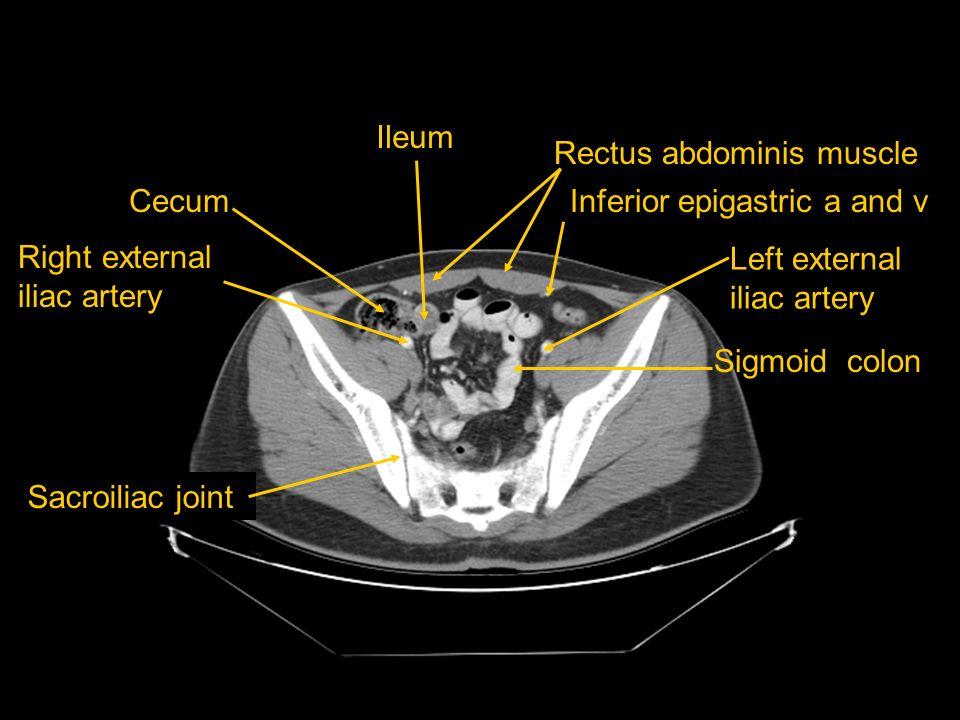 Ileum Rectus abdominis muscle. Cecum. Inferior epigastric a and v. Right external iliac artery. Left external iliac artery.