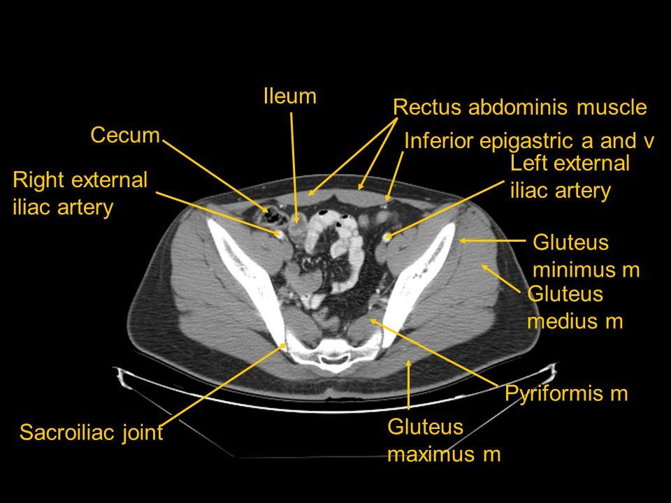 Ileum Rectus abdominis muscle. Cecum. Inferior epigastric a and v. Left external iliac artery. Right external iliac artery.