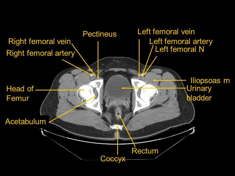 Left femoral vein Pectineus. Right femoral vein. Left femoral artery. Left femoral N. Right femoral artery.