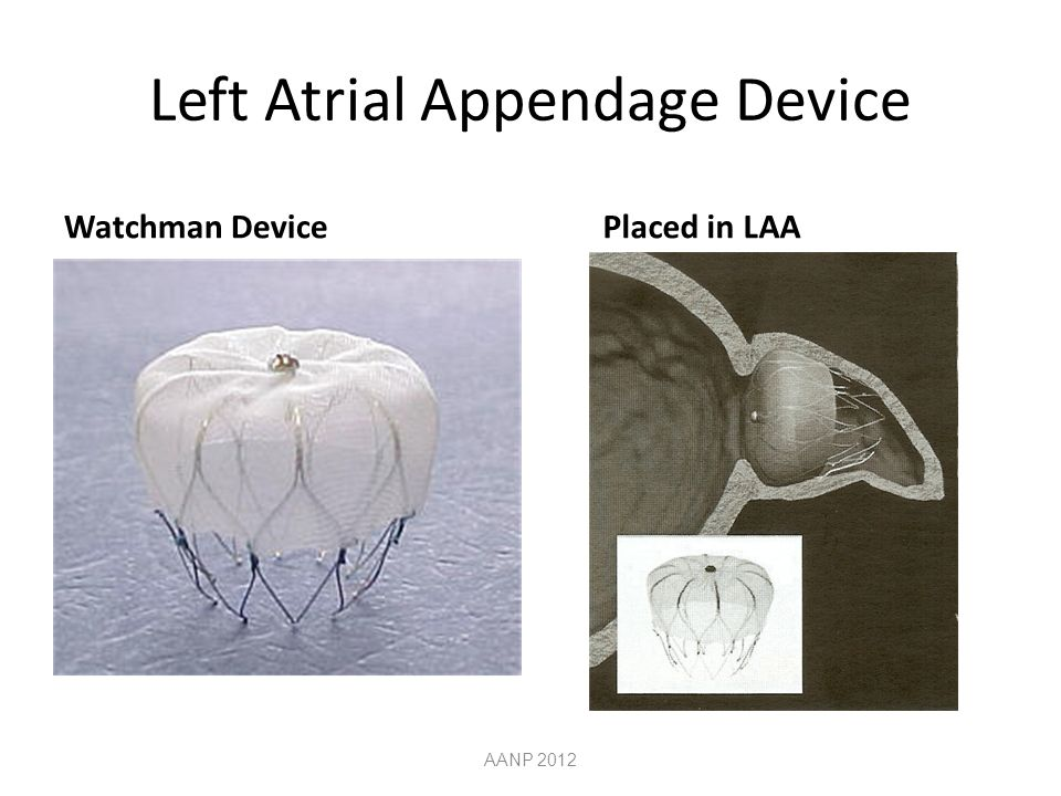 Left Atrial Appendage Device