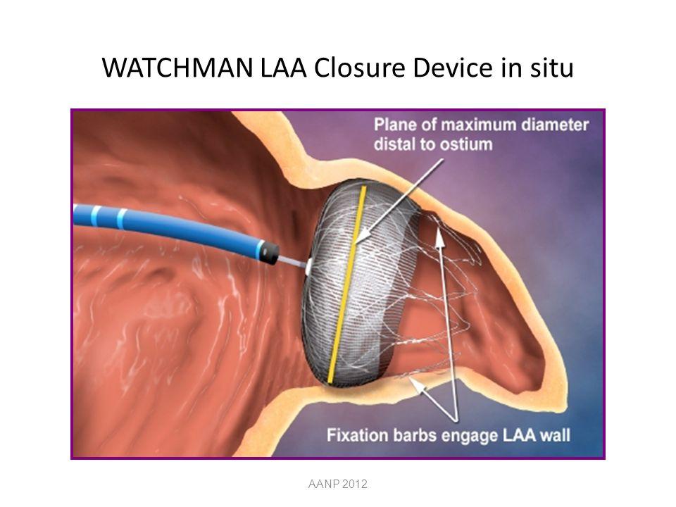 WATCHMAN LAA Closure Device in situ