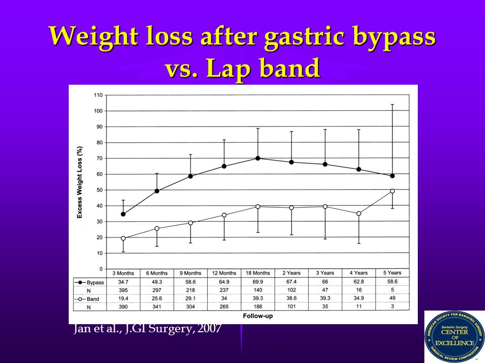 lap band versus gastric bypass Making the choice between the gastric sleeve vs lap band surgery can be a difficult one that's why our bariatric surgeons wrote this blog.
