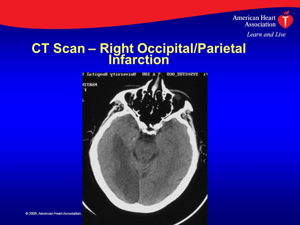 CT Scan – Right Occipital/Parietal Infarction
