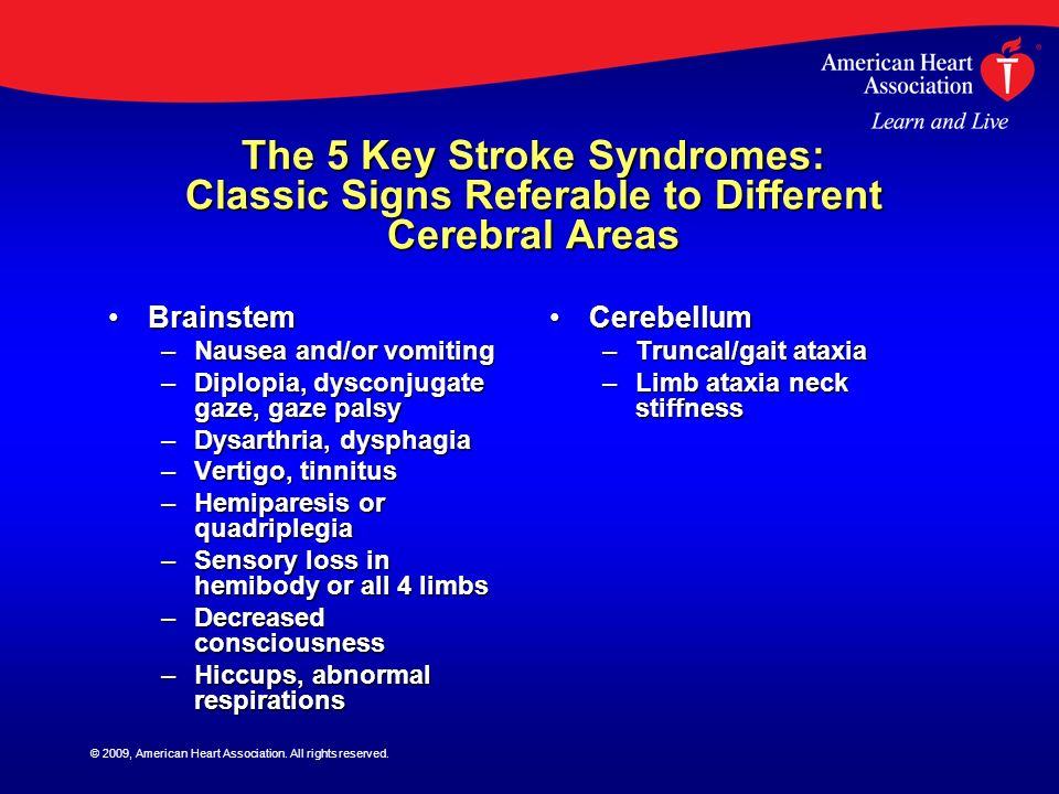The 5 Key Stroke Syndromes: Classic Signs Referable to Different Cerebral Areas