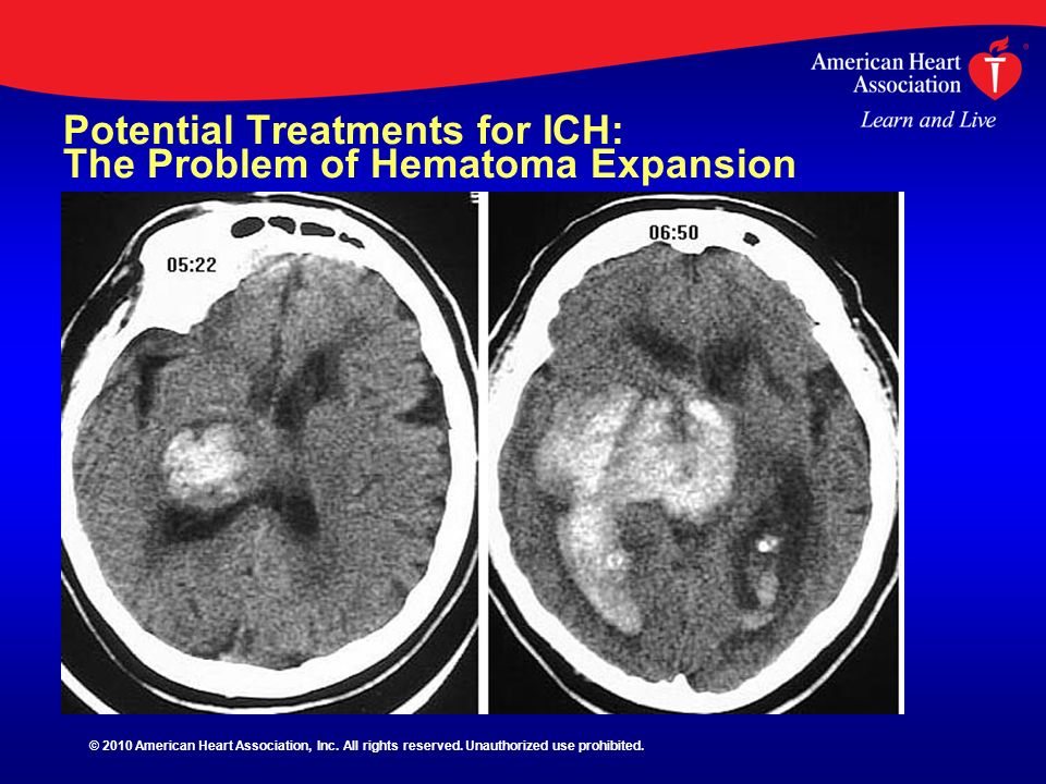 Potential Treatments for ICH: The Problem of Hematoma Expansion