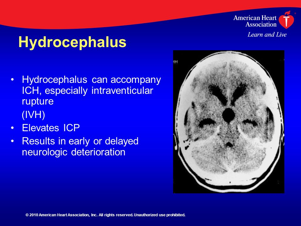 Hydrocephalus Hydrocephalus can accompany ICH, especially intraventicular rupture. (IVH) Elevates ICP.